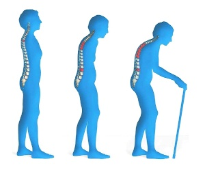 Osteoporosis - One out of Eight U.S. Adults Affected